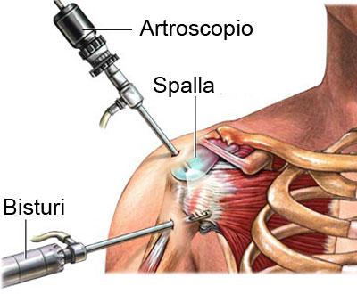 Artroscopia spalla