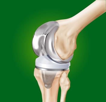 protesi di ginocchio totale