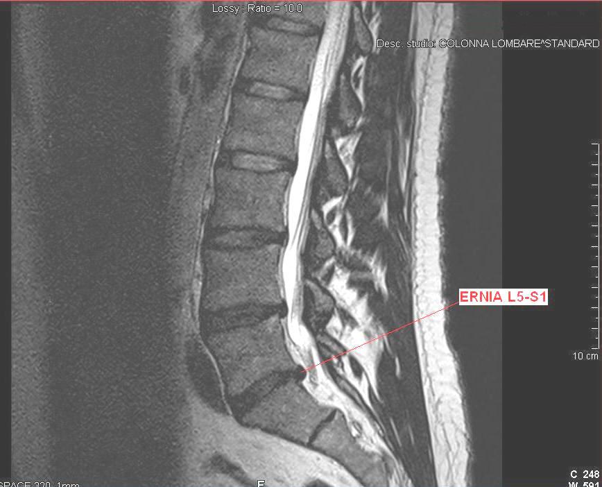 ernia lombare l5-s1