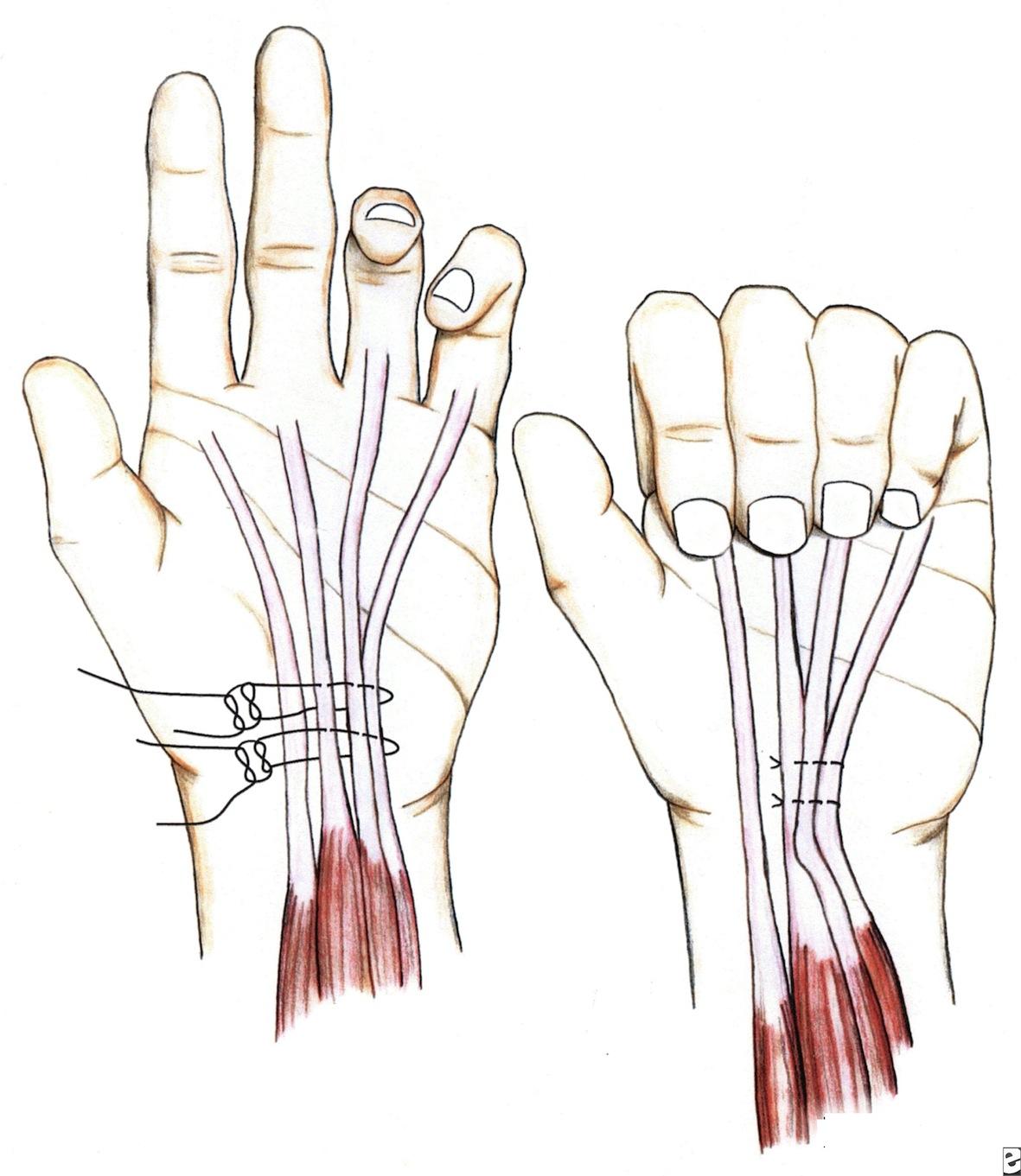 patologie tendinee