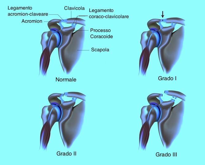 Diastasi-acromion-claveare